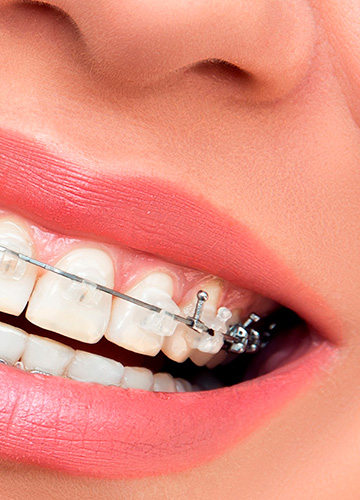 ortodoncia-novelda
